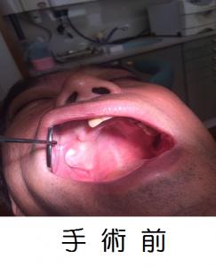 手術前 加工