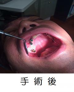 手術後 加工