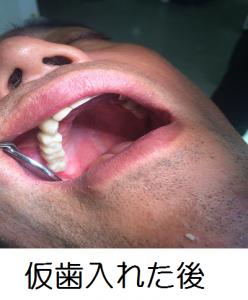 仮歯入れた後 加工